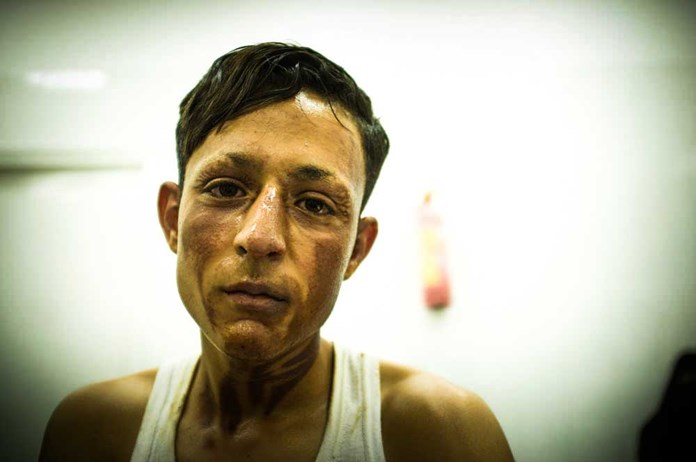 A young man from Gaza with burns to his face and neck.